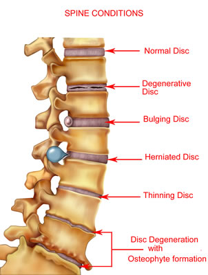 A Picture of various spine condtions such as herniated disc and degenerative disc